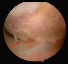 Immagine artroscopica