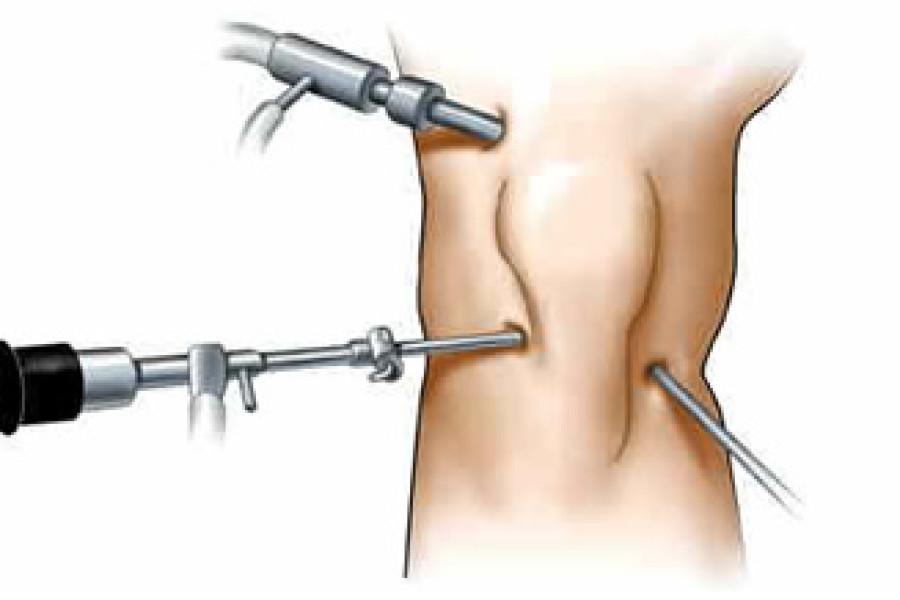 maiotti artroscopia